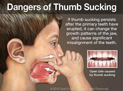 image of correcting teeth bad habits