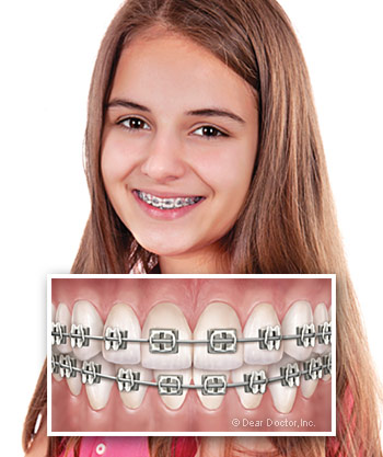 girl with metal braces