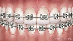 image of teeth with metal braces