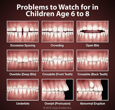 image of orthodontic problems