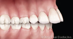 image of teeth protrusion
