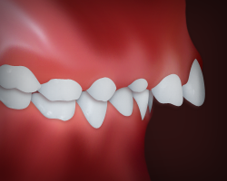 image of upper teeth protrusion